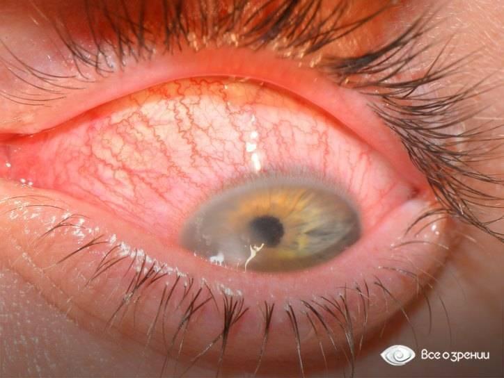 белые выделения из глаз у человека