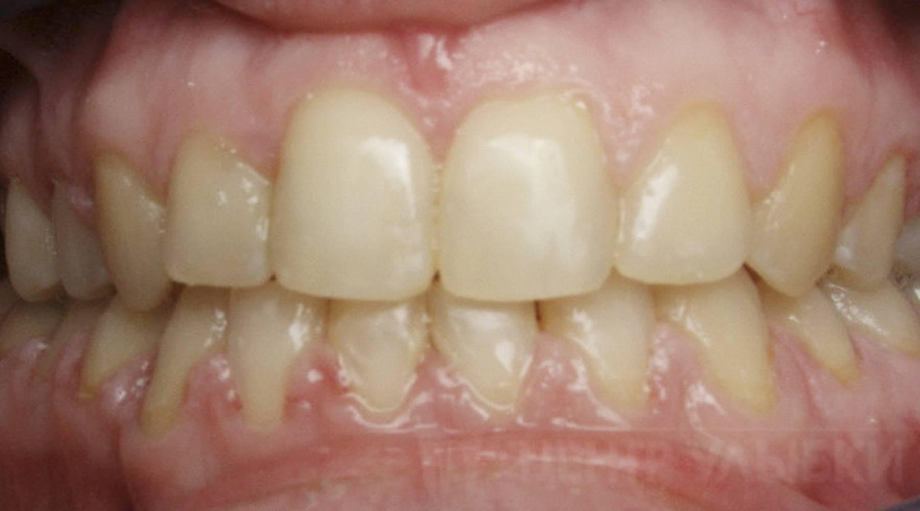 Идеальная улыбка или всё же патология? что такое прямой прикус
