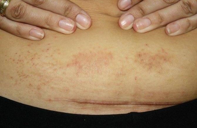 Простой контактный дерматит: признаки, лечение, прогноз — онлайн-диагностика