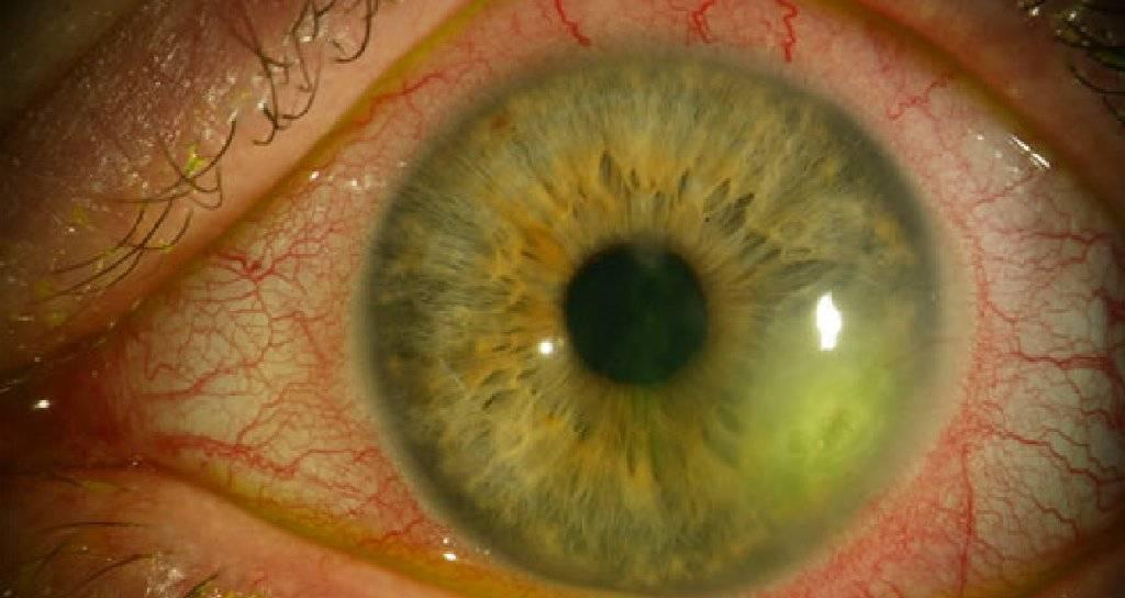 герпес в глазу симптомы