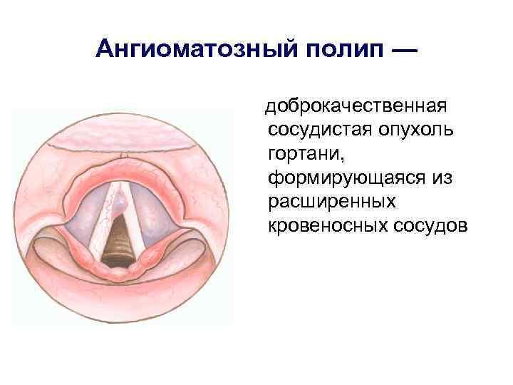 полипы на миндалинах