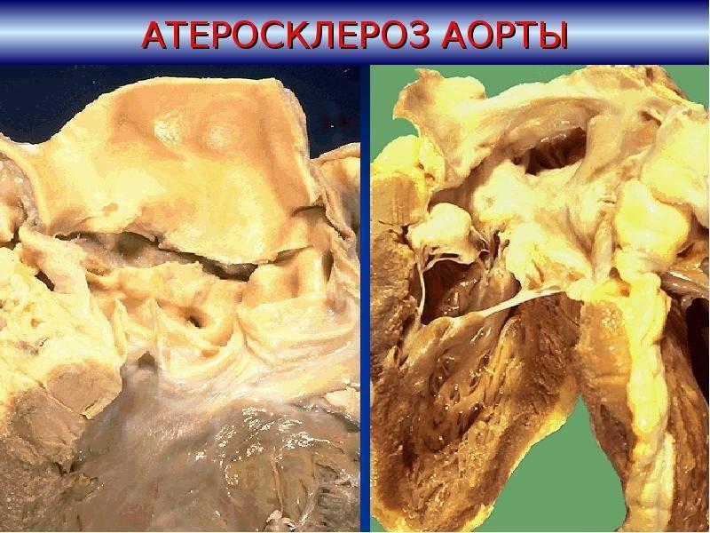 атеросклероз аорты степень 1