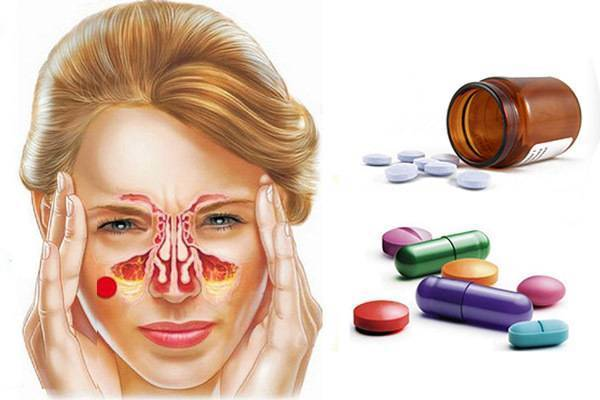 лечение гайморита без антибиотиков