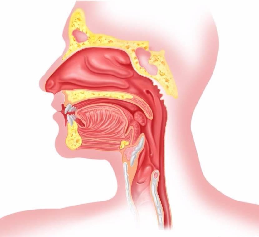 Как лечить раздражение слизистой горла