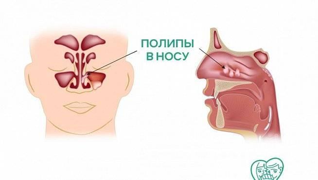 полипы носа симптомы