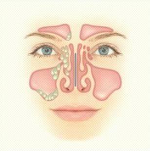 Этмоидит. причины, симптомы, признаки, диагностика и лечение патологии