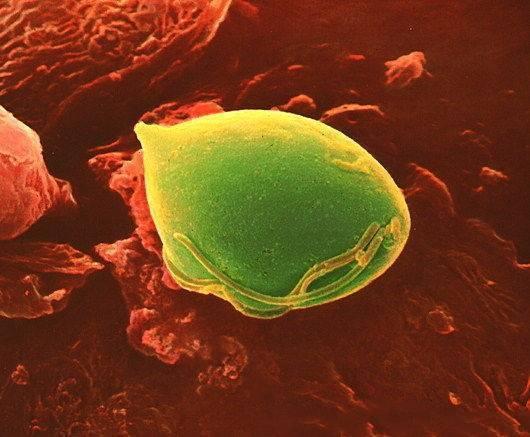 Инкубационный период и первые проявления трихомоноза у мужчин - симптомы и схема лечения препаратами