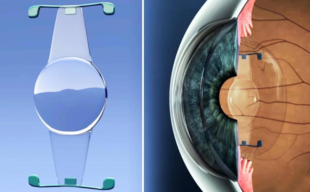 Протезирование органов зрения: искусственный хрусталик глаза