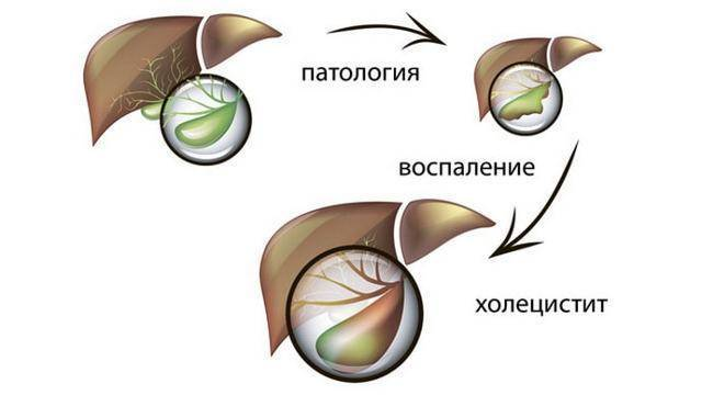 Что делать при приступе холецистита