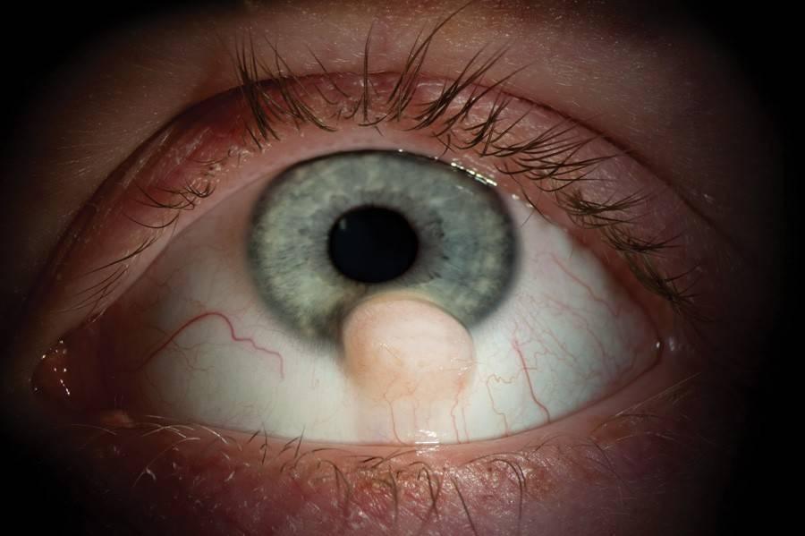 киста на веке глаза лечение