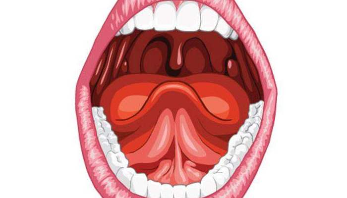 Герпесная ангина: причины, симптомы с фото и лечение в домашних условиях