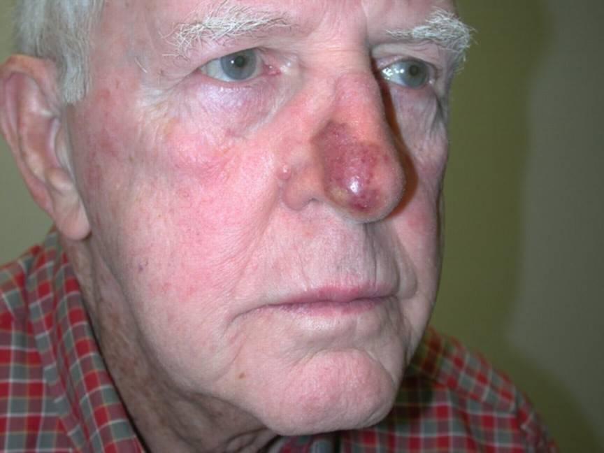 рак носа симптомы