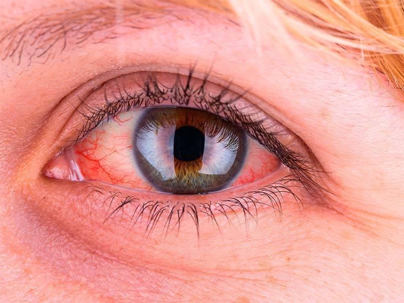 увеит глаза лечение
