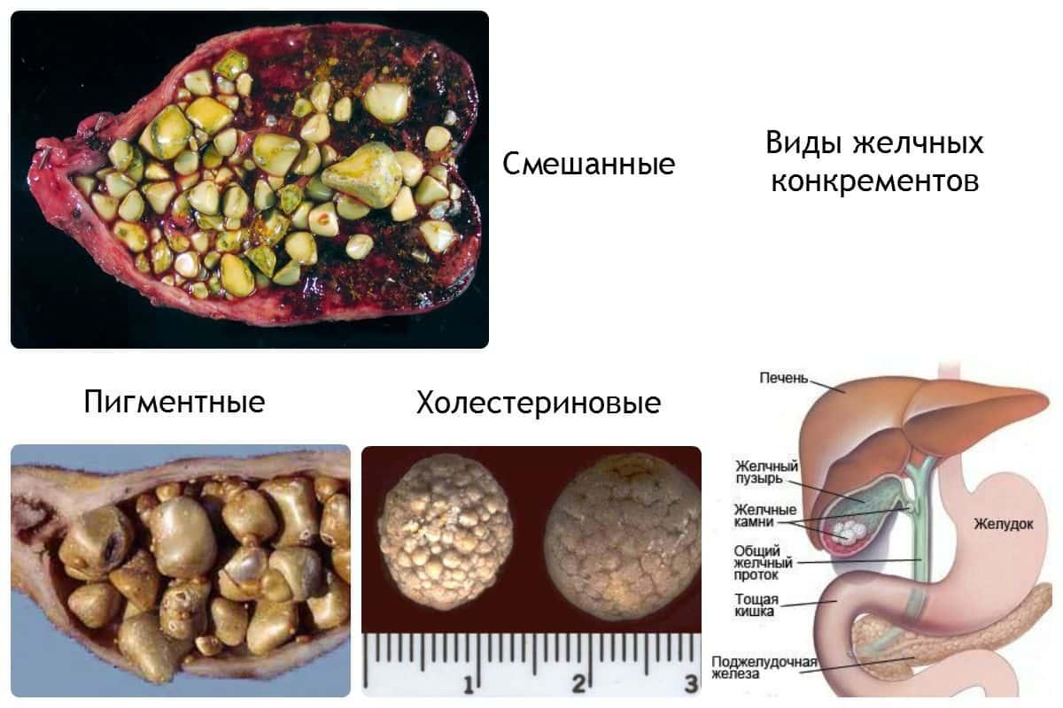 Дробление камней в желчном пузыре: ход процедуры, противопоказания, риски