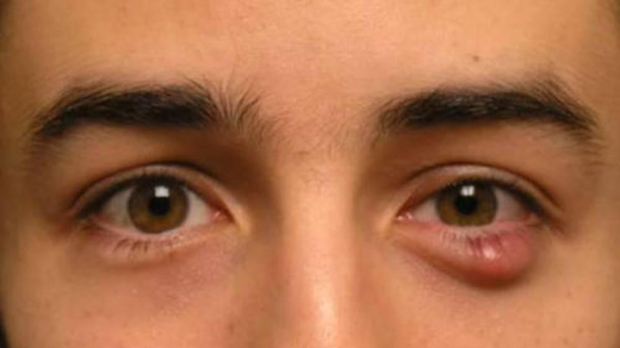 Можно ли прогревать глазной ячмень куриным яйцом
