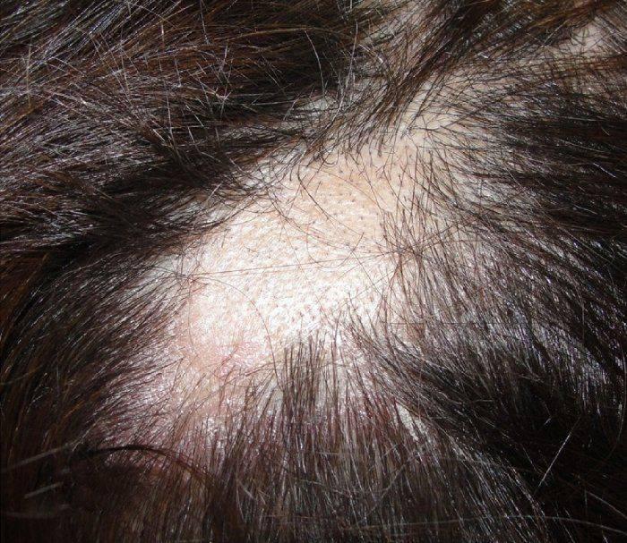 Демодекоз головы – причины, симптомы, диагностика, лечение, профилактика