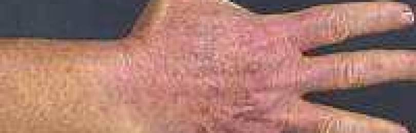 Дерматит на руках: лечение, народные средства, причины и виды дерматита