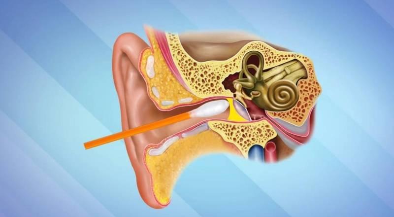 Как чистить свои уши