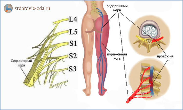 Воспаление седалищного нерва : причины, симптомы, лечение