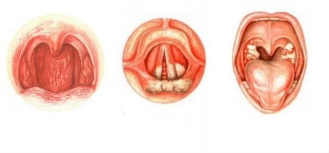 Какие симптомы фарингита у ребенка и как его лечить
