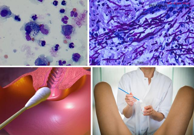 Уреаплазма у женщин – симптомы и лечение. уреаплазмоз у женщин (уреаплазма парвум, уреалитикум) – причины возникновения, схема лечения