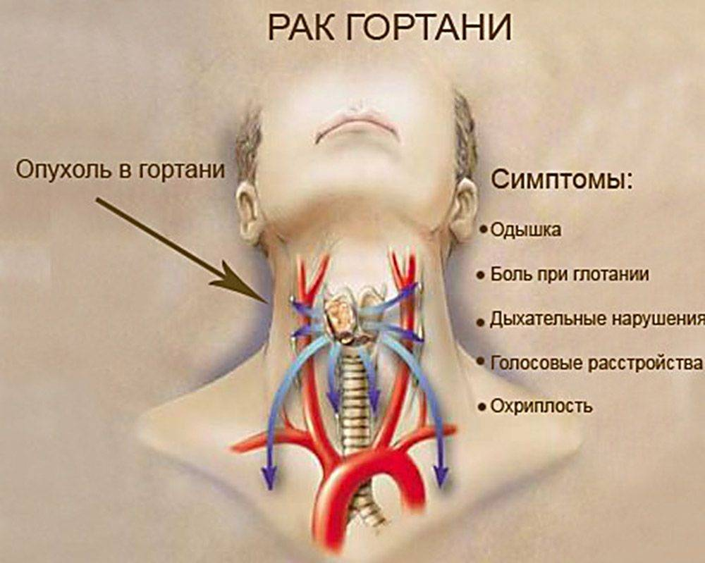 Рак горла - первые признаки, фото, лечение и прогноз | здрав-лаб