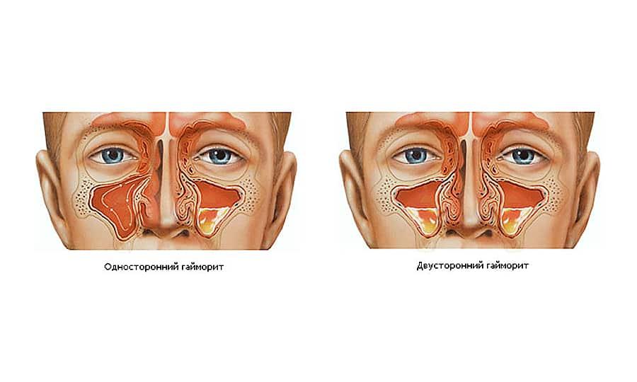 Синусит - симптомы болезни, профилактика и лечение острого синусита, причины заболевания и его диагностика на eurolab