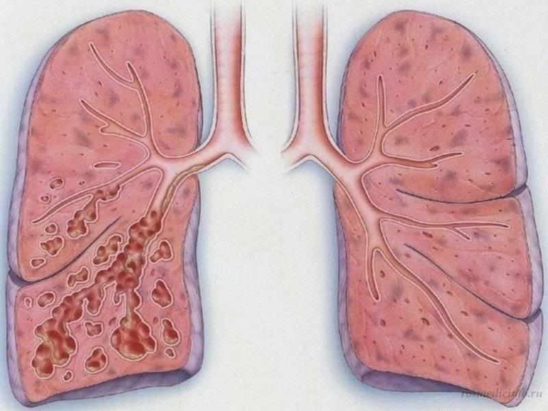 Как лечить аортосклероз легких