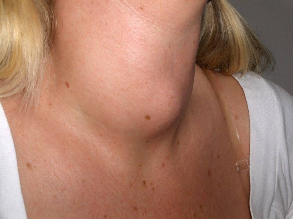 Гиперплазия щитовидной железы 1 степени: эндокринология и беременность