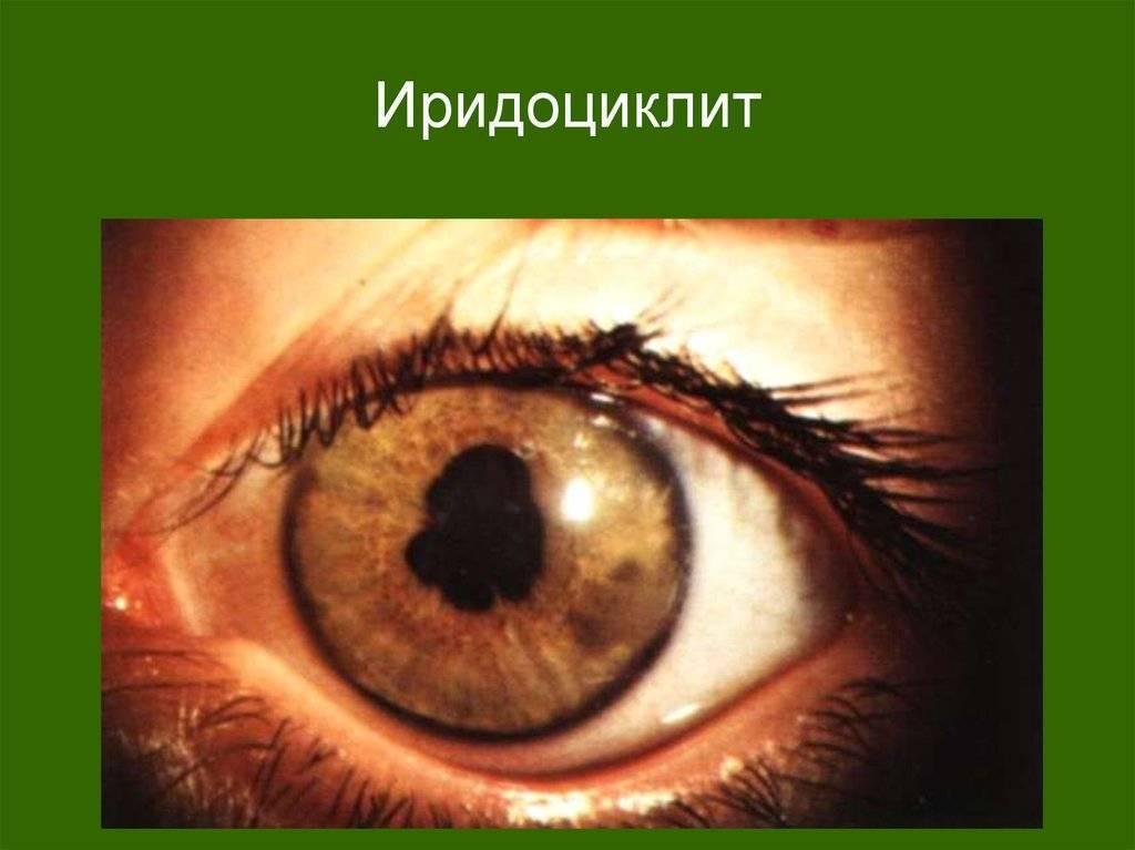 Заболевание глаз — ирит. ирит глаза - симптомы и лечение