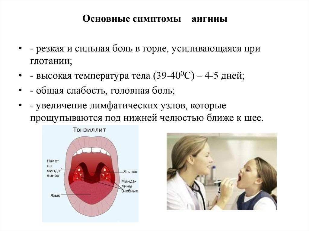 Долго болит горло и не проходит без температуры