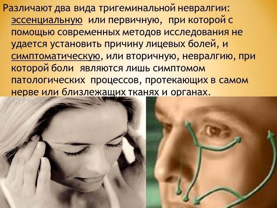 Сложный синдром чарлина: клиническая картина и особенности терапии невралгии носоресничного нерва