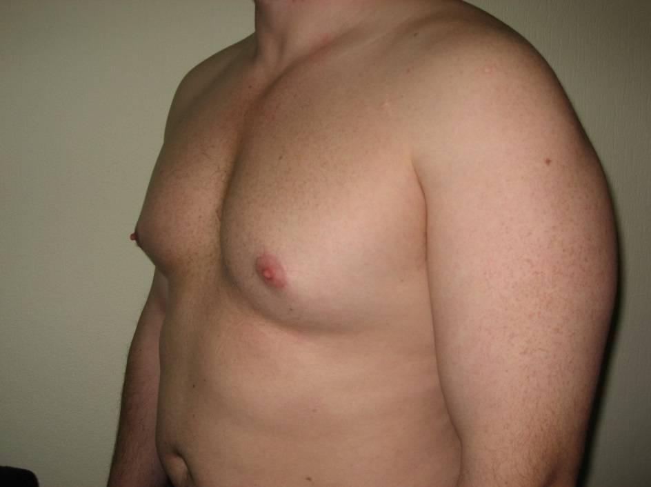 Мастопатия у мужчин: причины заболевания, симптомы, лечение