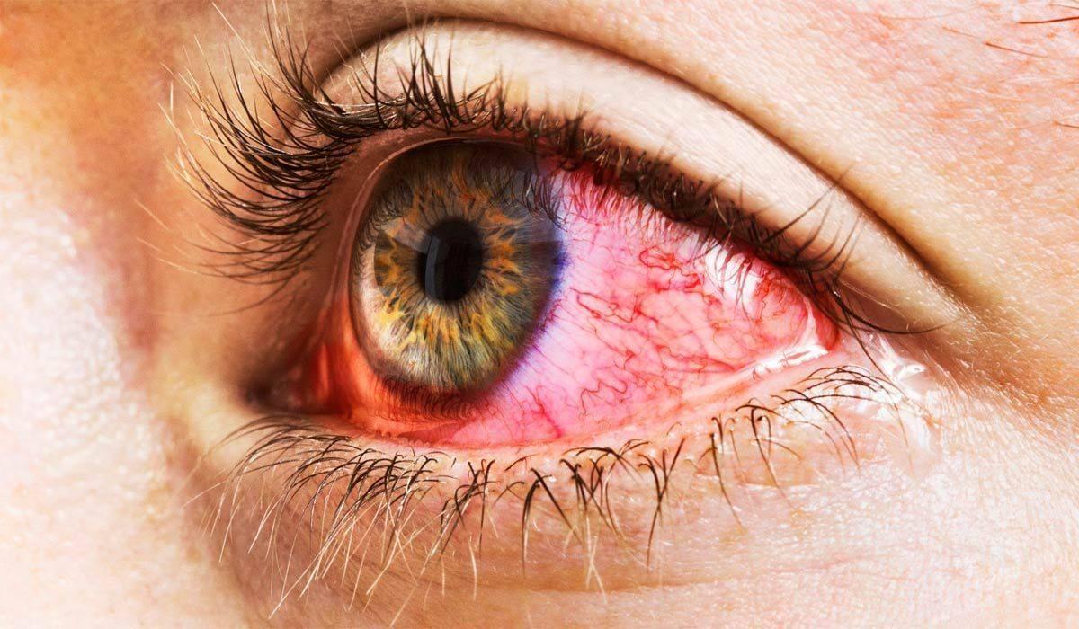 Вирусный конъюнктивит у детей: лечение, как лечить аденовирусный, фото симптомов, капли и препараты для глаз