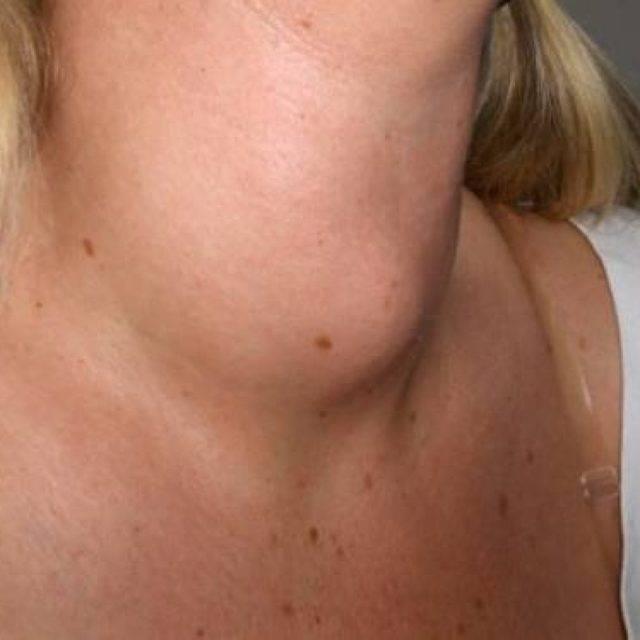 опухоль щитовидной железы симптомы