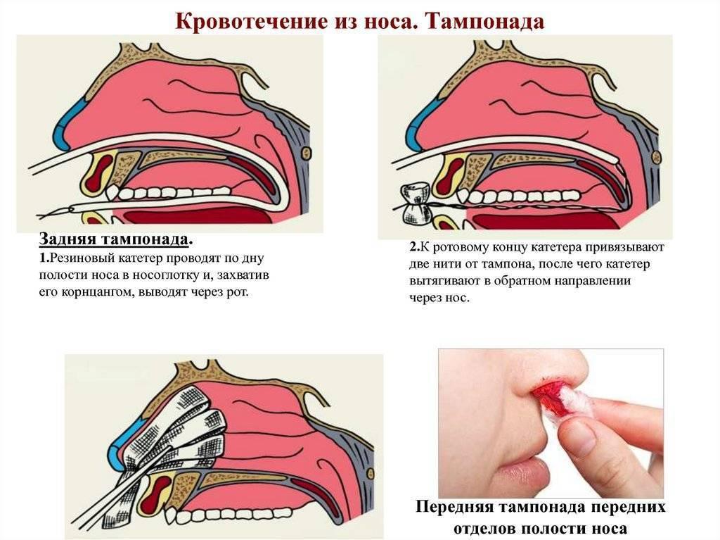Турунды в нос при гайморите: как правильно сделать, необходимые препараты, показания и противопоказания