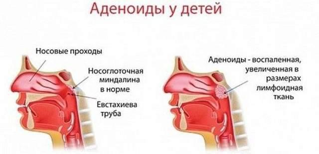 У грудничка слизь в носу:  популярные вопросы и ответы на них