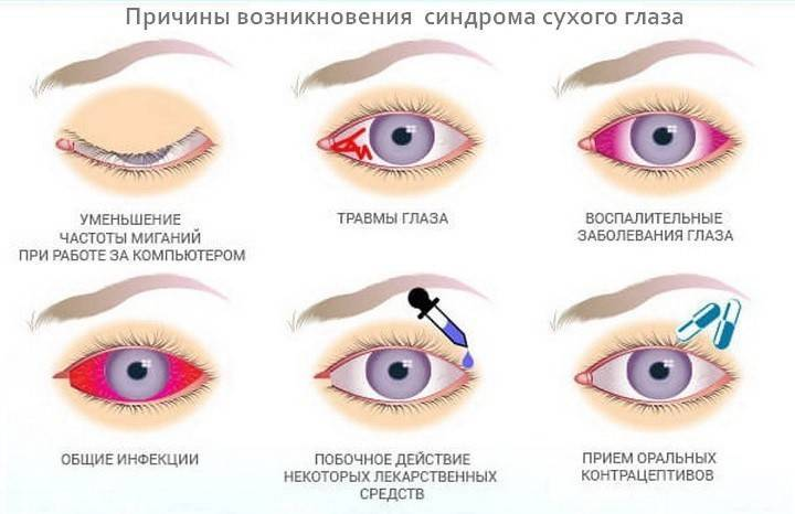 Сухость в глазах. причины, лечение, капли при сухом глазе, народные методы лечения :: polismed.com