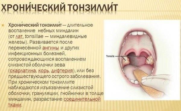 Средства для полоскания горла при тонзиллите