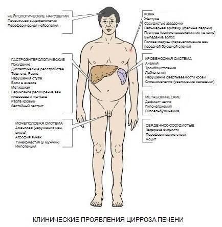 цирроз симптомы на начальной стадии