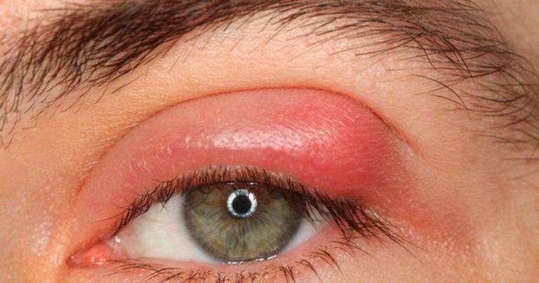 как лечить начинающийся ячмень на глазу
