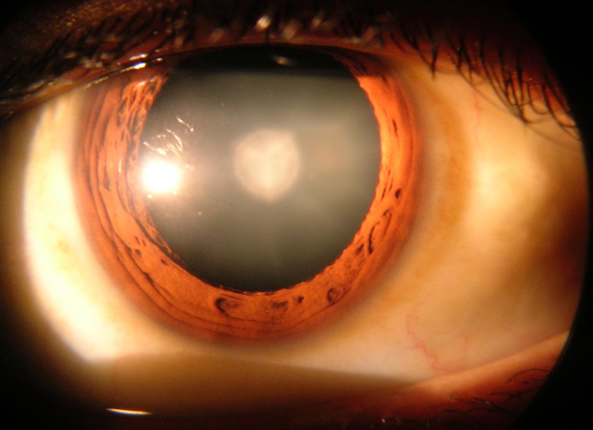 затуманивание зрения в одном глазу