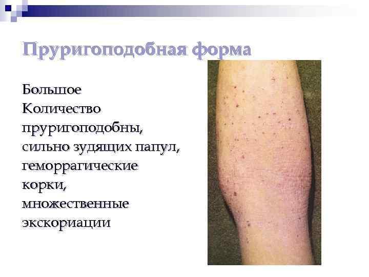 дерматит папулы