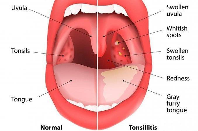 Гнойная ангина у ребенка 3 года (признаки этого заболеваний и советы по лечению)