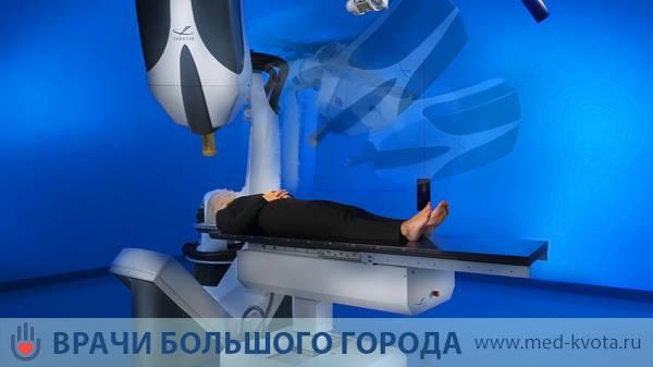 лечение облучением рака молочной железы