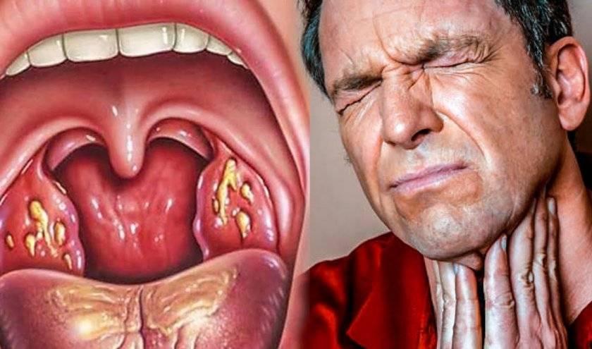Отек горла при ангине: что делать, как снять, чем лечить