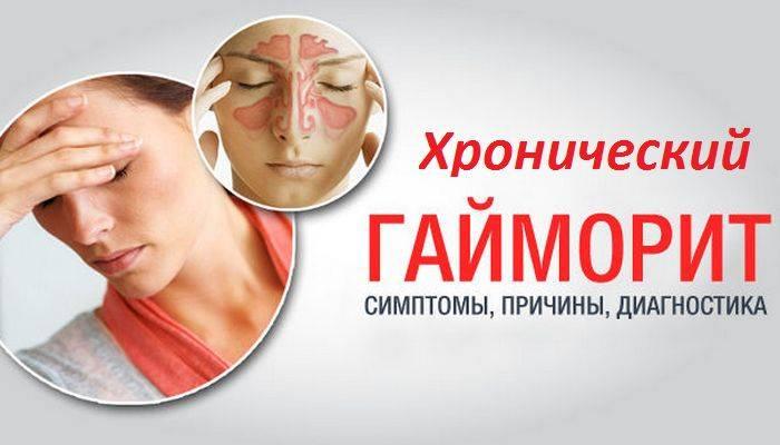 как избавиться от хронического гайморита навсегда