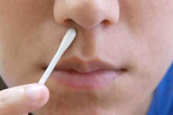 При наклоне головы из носа вытекает жидкость