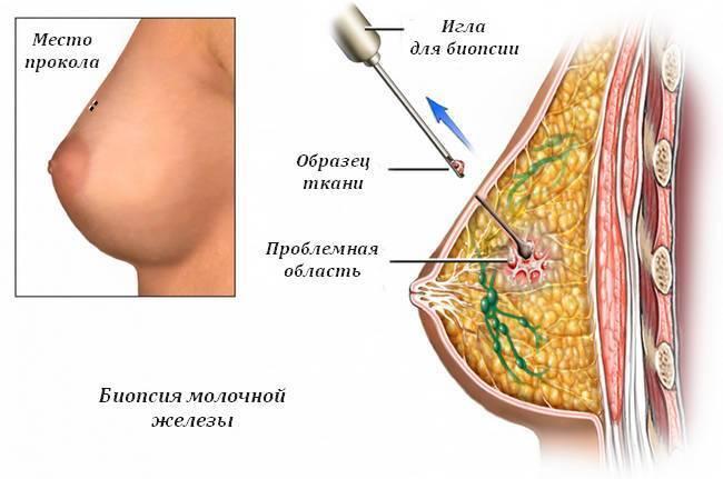 Кисты в молочной железе лечение. диагностика кисты молочной железы
