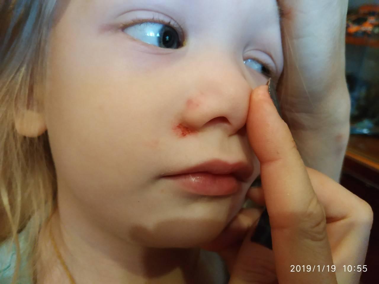 Как вылечить герпес в носу у ребенка